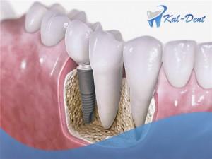 implanty zębów Ursynów