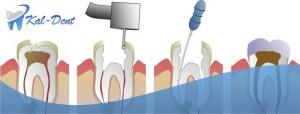 leczenie kanałowe ursynów