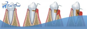 sequence of four images indicating the degree of periodontitis degenerative